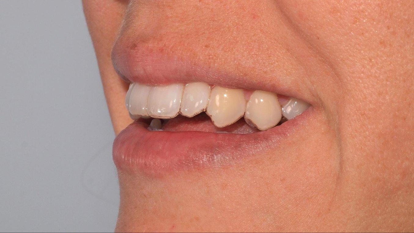 Un retenedor termoformado sobre un modelo de ortodoncia impreso con la Draft Resin y ajustes de 200 micras.
