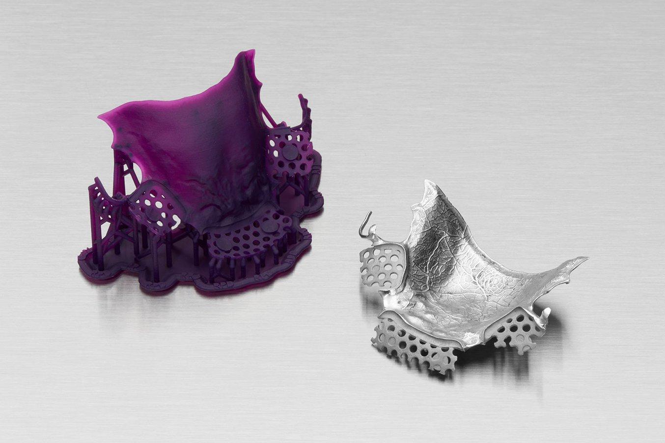 Un modello di scheletrato stampato in 3D con la Castable Wax Resin (a sinistra) e il telaio finale in cromo-cobalto colato (a destra).