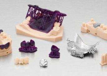 highlight image for Neu bei Formlabs Dental: Der digitale Vorteil beim Gießen und Pressen