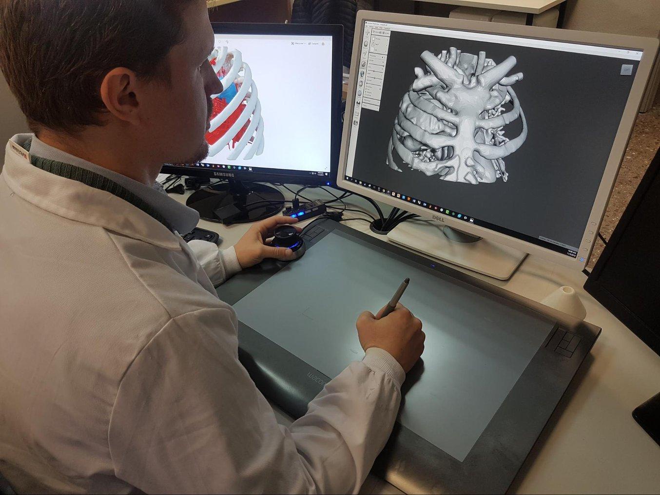 Anatomische Modelle auf Basis von CT- oder MRT-Scans eines Patienten. Die Scandaten müssen in einer Software segmentiert werden, um die wichtigen Bereiche für das 3D-Druckmodell zu isolieren.