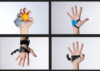 "highlight image for Dani Clode's 3D Printed Prosthetic ""The Third Thumb"""