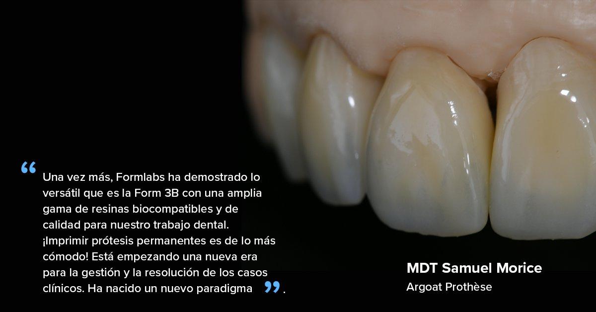 """""""Una vez más, Formlabs ha demostrado lo versátil que es la Form 3B con una amplia gama de resinas biocompatibles y de calidad para nuestro trabajo dental. ¡Imprimir prótesis permanentes es de lo más cómodo!"""""""