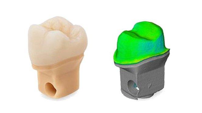 3D Printing Dental Crown & Bridge Models | Formlabs