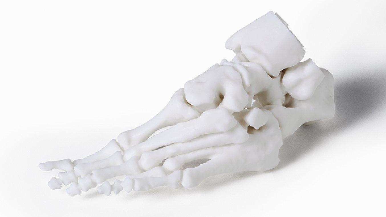 Modello del piede di un paziente realizzato su misura tramite la stampa 3D e utilizzato in preparazione a interventi complessi.