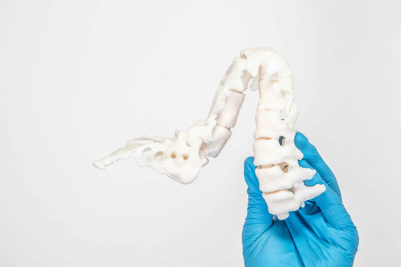 Patient-specific anatomical models: 3d printed spine