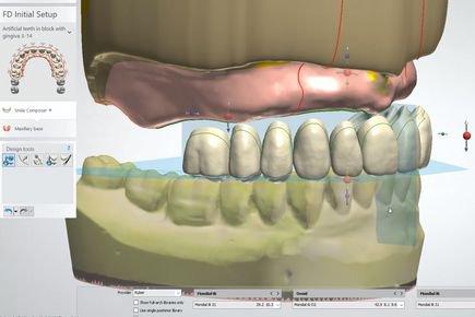 Dentures Design