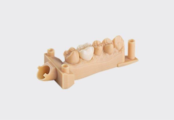 Crown and bridges model - 3D printing