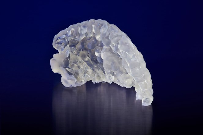 An anatomical model of a prefrontal cortex 3D printed in Elastic Resin on the Form 2. Model provided byEmbodi3D.