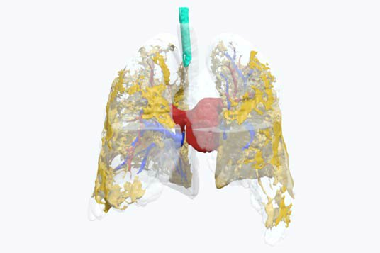 Look Inside the Lungs of a Coronavirus Patient With The Help of This 3D Model