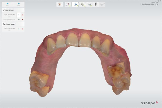 Application Guide: 3D Printing Surgical Guides | Formlabs