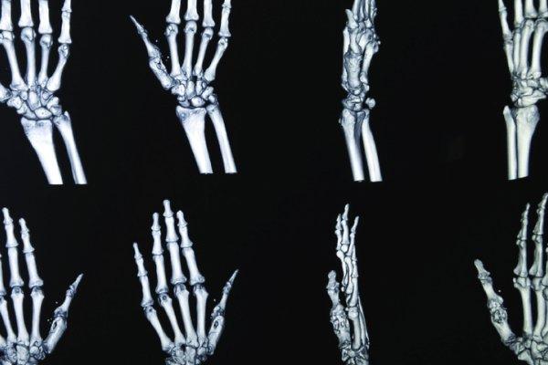 Escanea la anatomía del paciente