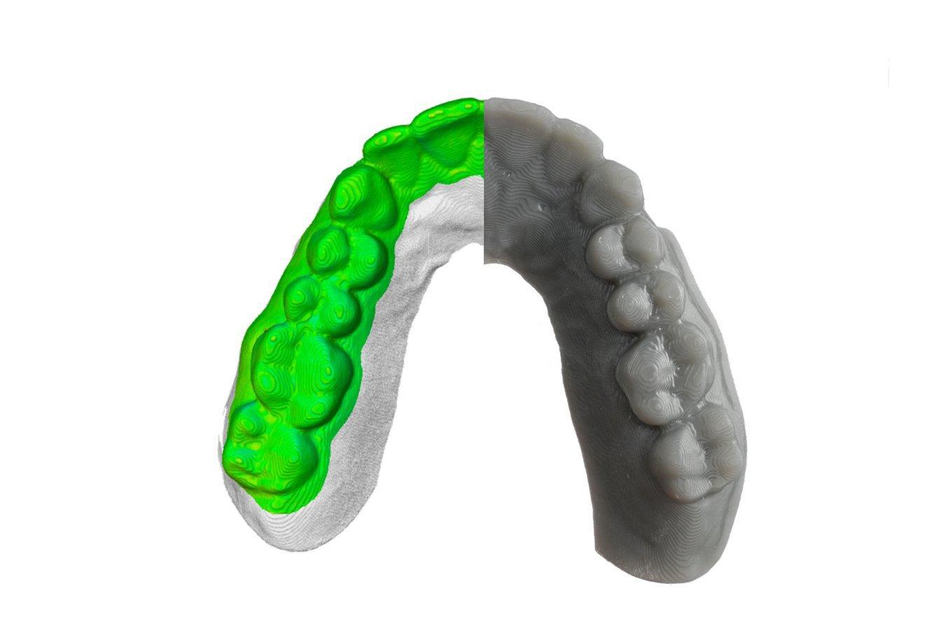 dental 3d printing resolution