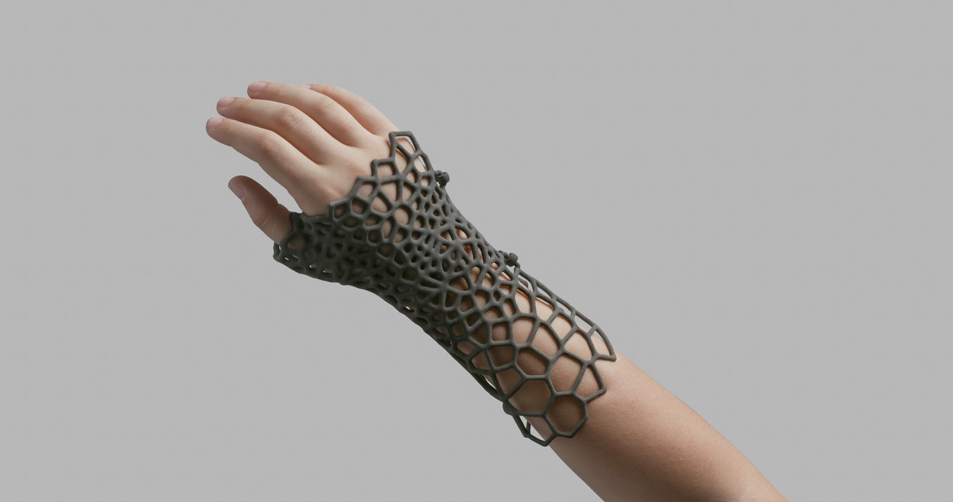 Selective Laser Sintering (SLS) - Hand splint designed with a complex pattern to reduce weight.